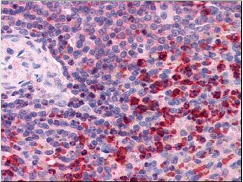 Immunohistochemistry (Paraffin-embedded Sections) (IHC (p)) image for anti-Thioredoxin Reductase 1 (TXNRD1) (C-Term) antibody (ABIN615409)