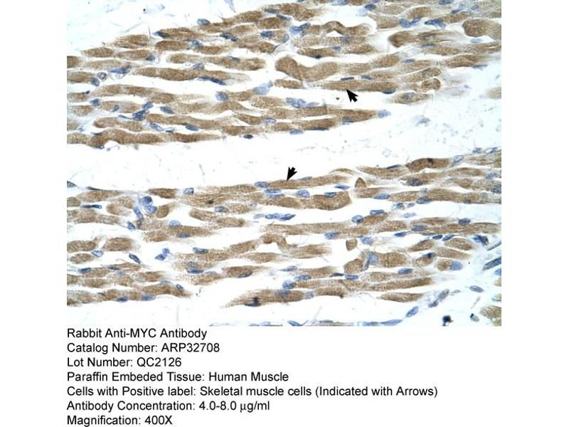 Immunohistochemistry (IHC) image for anti-C-MYC antibody (V-Myc Myelocytomatosis Viral Oncogene Homolog (Avian)) (N-Term) (ABIN2777539)