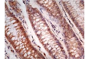 Immunohistochemistry (Paraffin-embedded Sections) (IHC (p)) image for anti-Caspase 1 (CASP1) antibody (ABIN252521)