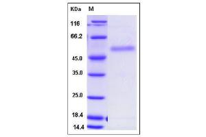 Image no. 1 for R-Spondin 2 (RSPO2) (AA 1-205), (Leu186Pro-Mutant) (Active) protein (Fc Tag) (ABIN2005415)