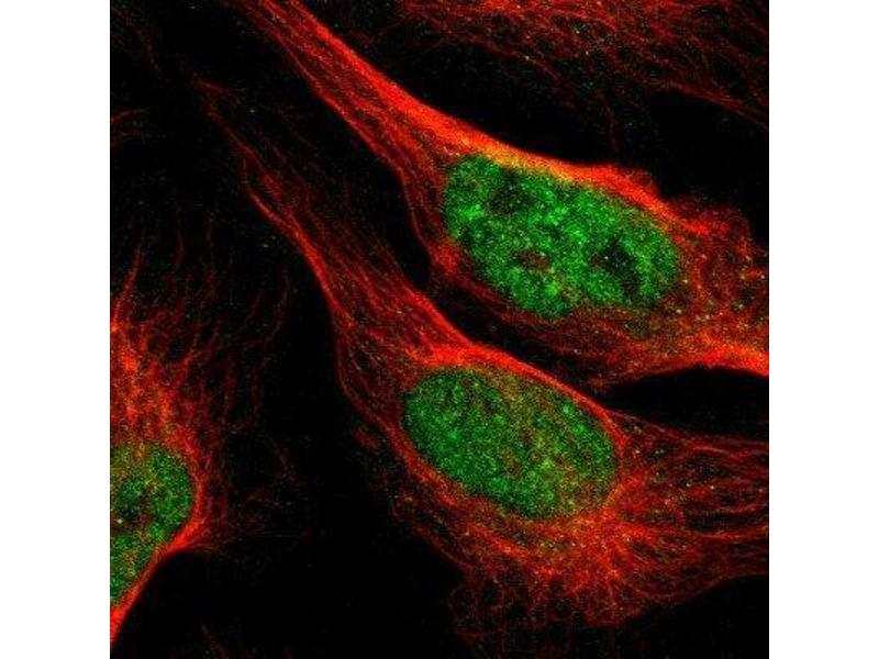 Immunofluorescence (IF) image for anti-Fibroblast Growth Factor 1 (Acidic) (FGF1) antibody (ABIN4311439)