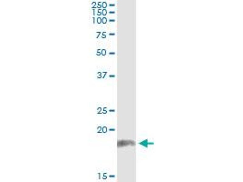 Immunoprecipitation (IP) image for anti-Protein Phosphatase 2A 48 KDa Regulatory Subunit (PPP2R3B) (AA 1-225) antibody (ABIN525999)