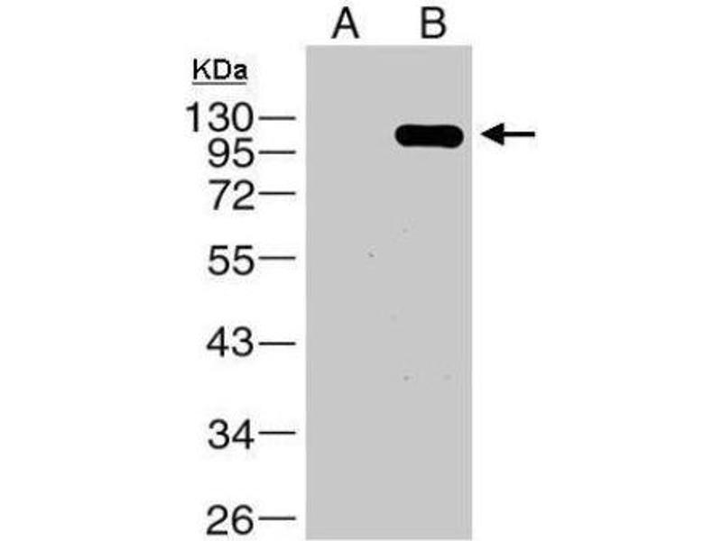 Western Blotting (WB) image for anti-V-Raf-1 Murine Leukemia Viral Oncogene Homolog 1 (RAF1) antibody (ABIN4340713)