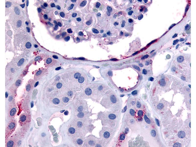 Immunohistochemistry (IHC) image for anti-V-Erb-A erythroblastic Leukemia Viral Oncogene Homolog 4 (Avian) (ERBB4) (C-Term) antibody (ABIN213439)
