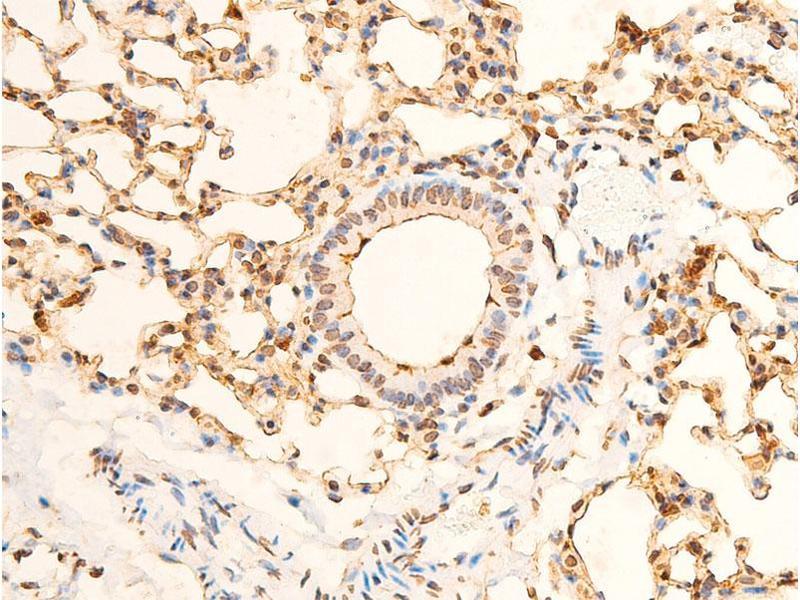 Immunohistochemistry (IHC) image for anti-Eukaryotic Translation Initiation Factor 2A, 65kDa (EIF2A) (pSer51) antibody (ABIN6255389)