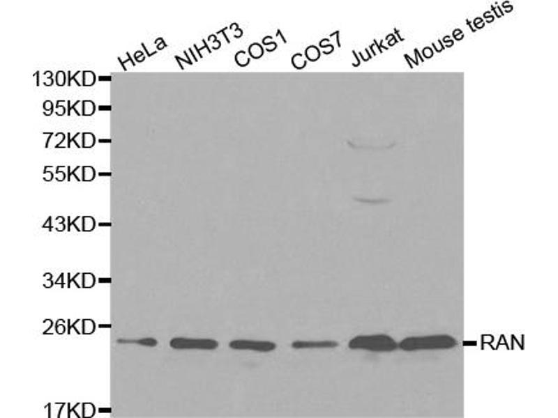 Image no. 1 for anti-RAN, Member RAS Oncogene Family (RAN) antibody (ABIN6566716)