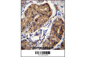 Image no. 1 for anti-Deleted in Colorectal Carcinoma (DCC) (AA 643-670), (Center) antibody (ABIN656268)