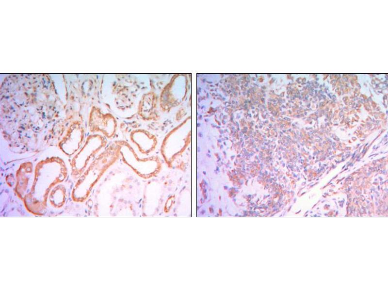 Immunohistochemistry (IHC) image for anti-Hexokinase 1 antibody (HK1) (ABIN1107523)