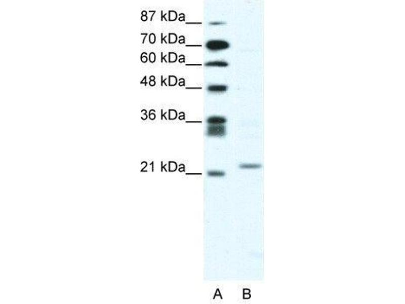 Western Blotting (WB) image for anti-Twist Homolog 1 (Drosophila) (TWIST1) antibody (ABIN189738)