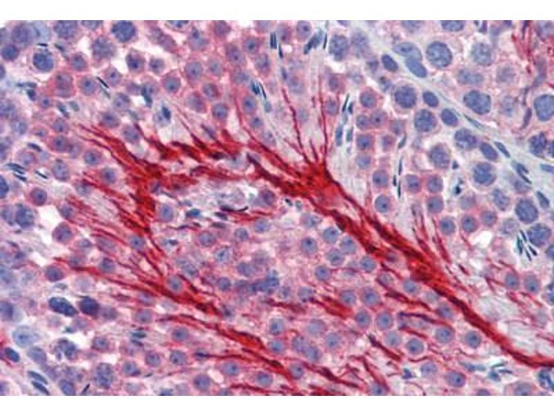 Image no. 2 for anti-Basigin (Ok Blood Group) (BSG) antibody (ABIN462349)