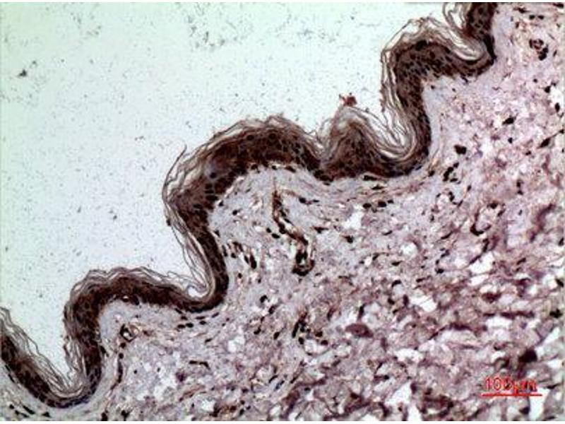 Immunohistochemistry (IHC) image for anti-Lectin, Galactoside-Binding, Soluble, 3 (LGALS3) (C-Term) antibody (ABIN3187710)