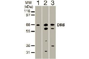 Western Blotting (WB) image for anti-Tumor Necrosis Factor Receptor Superfamily, Member 21 (TNFRSF21) (AA 371-655) antibody (ABIN123338)