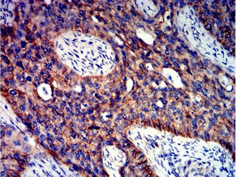 Immunohistochemistry (IHC) image for anti-Catenin (Cadherin-Associated Protein), beta 1, 88kDa (CTNNB1) (AA 1-100) antibody (ABIN5611273)