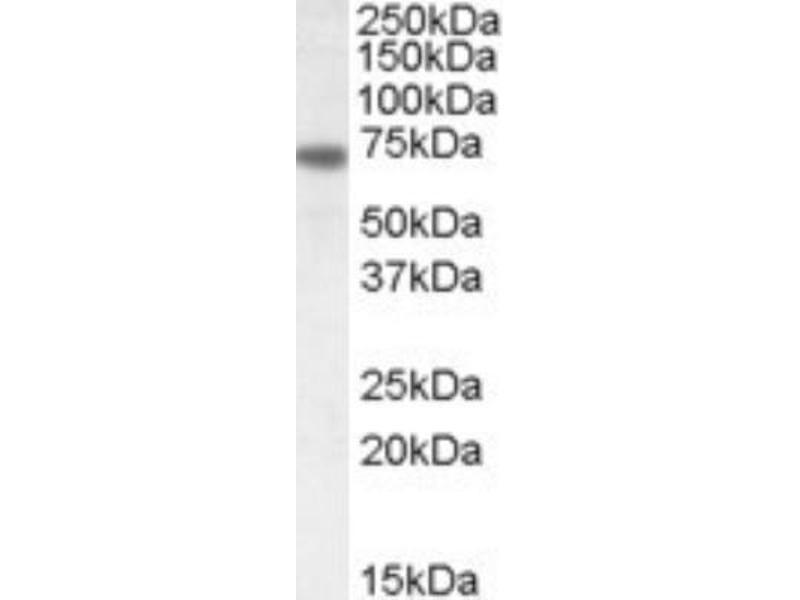 Western Blotting (WB) image for anti-Netrin 1 (NTN1) (C-Term) antibody (ABIN4338686)
