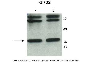 Image no. 4 for anti-Growth Factor Receptor-Bound Protein 2 (GRB2) (N-Term) antibody (ABIN2787701)