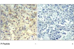 anti-Cofilin 1 (Non-Muscle) (CFL1) (pTyr140) antibody