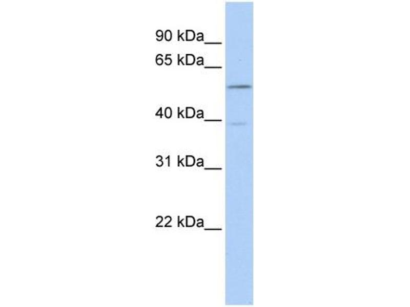 Western Blotting (WB) image for anti-Estrogen Receptor 2 (ER Beta) (ESR2) (Middle Region) antibody (ABIN2779528)