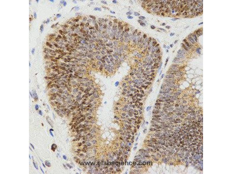Immunohistochemistry (IHC) image for anti-LHB antibody (Luteinizing Hormone beta Polypeptide) (ABIN2405734)