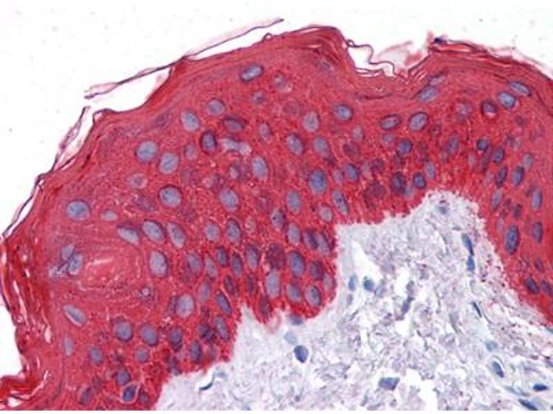 Image no. 2 for anti-Cytokeratin 1 (KRT1) antibody (ABIN1576007)