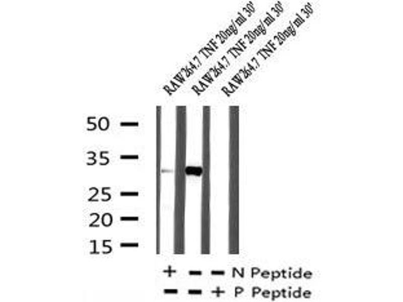 Image no. 3 for anti-Coagulation Factor III (thromboplastin, Tissue Factor) (F3) (pSer290) antibody (ABIN6269859)