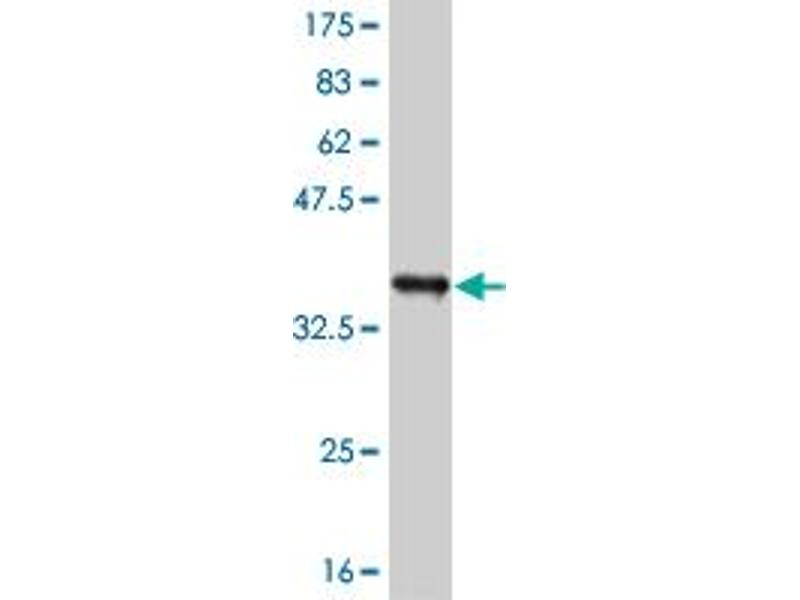 Western Blotting (WB) image for anti-Receptor-Interacting Serine-threonine Kinase 2 (RIPK2) (AA 431-541) antibody (ABIN393861)