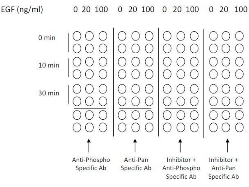 image for Epidermal Growth Factor Receptor (EGFR) ELISA Kit (ABIN1981829)