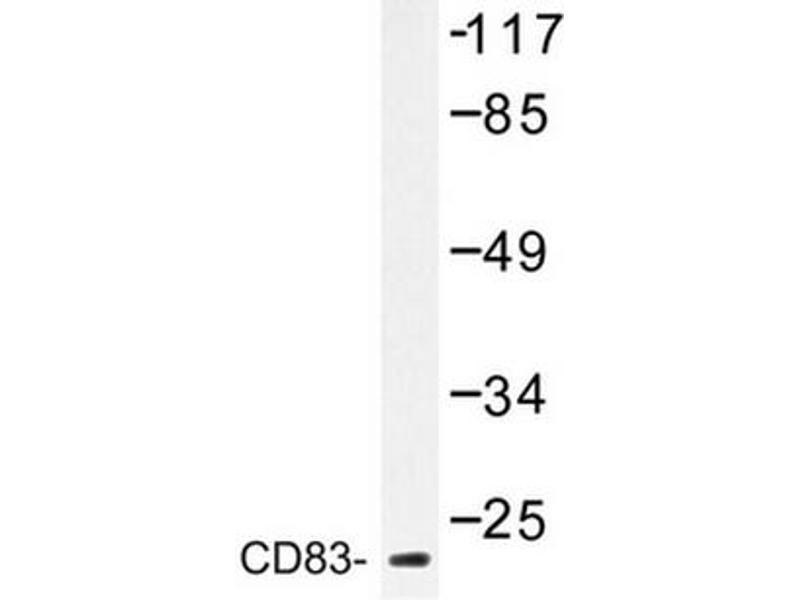 image for anti-CD83 antibody (CD83) (ABIN272283)