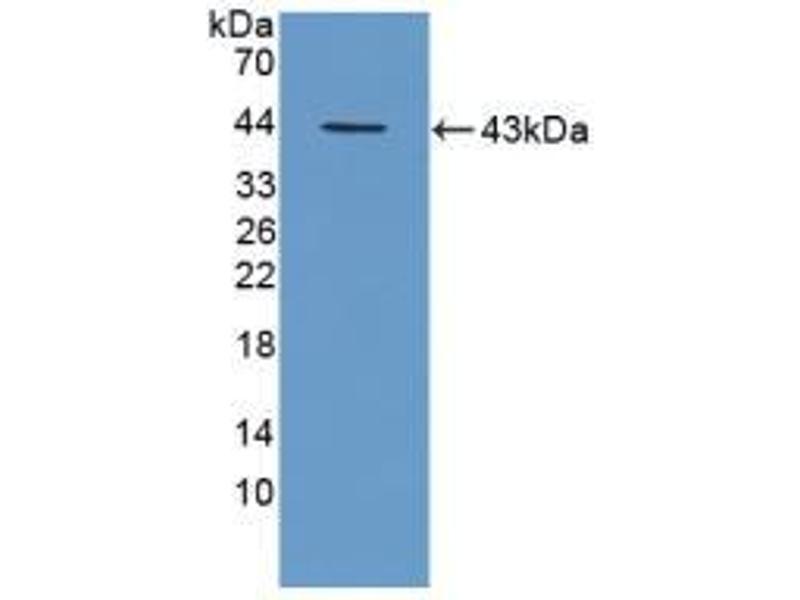 Western Blotting (WB) image for anti-Tripeptidyl Peptidase I (TPP1) (AA 198-562) antibody (ABIN1871865)