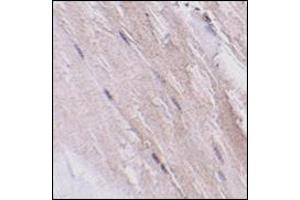 Image no. 1 for anti-Glioblastoma Amplified Sequence (GBAS) (N-Term) antibody (ABIN500353)