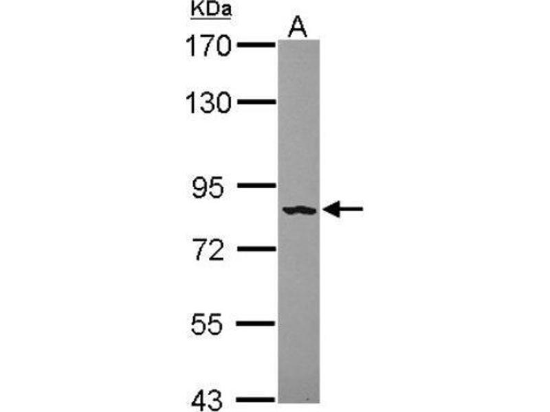 Western Blotting (WB) image for anti-Fibroblast Growth Factor Receptor 4 (FGFR4) (Center) antibody (ABIN4311570)