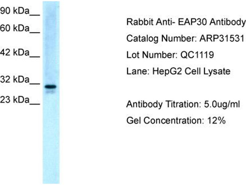 Western Blotting (WB) image for anti-SNF8, ESCRT-II Complex Subunit, Homolog (S. Cerevisiae) (SNF8) (N-Term) antibody (ABIN182378)