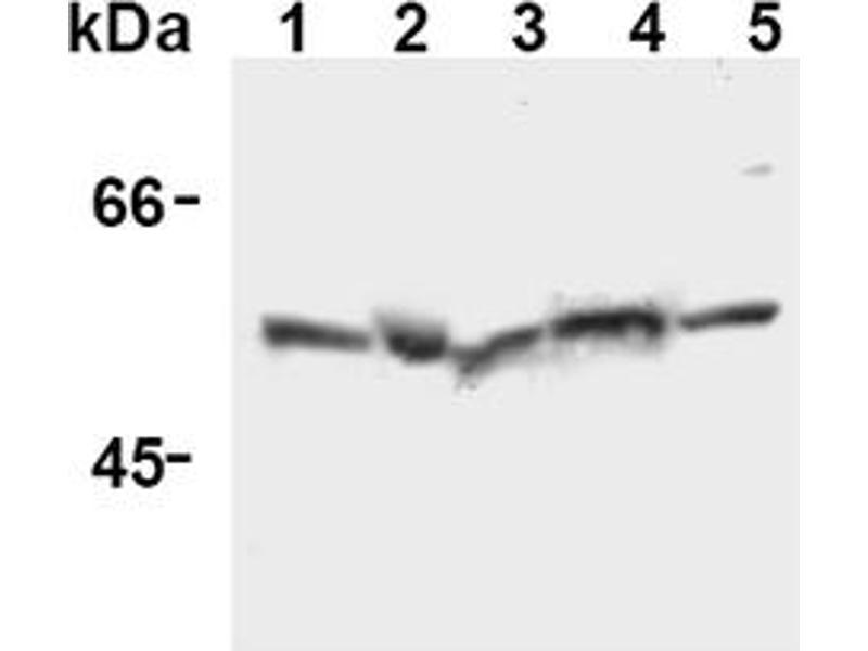 Western Blotting (WB) image for anti-Caspase 12 (CASP12) (AA 95-318), (N-Term) antibody (ABIN567796)