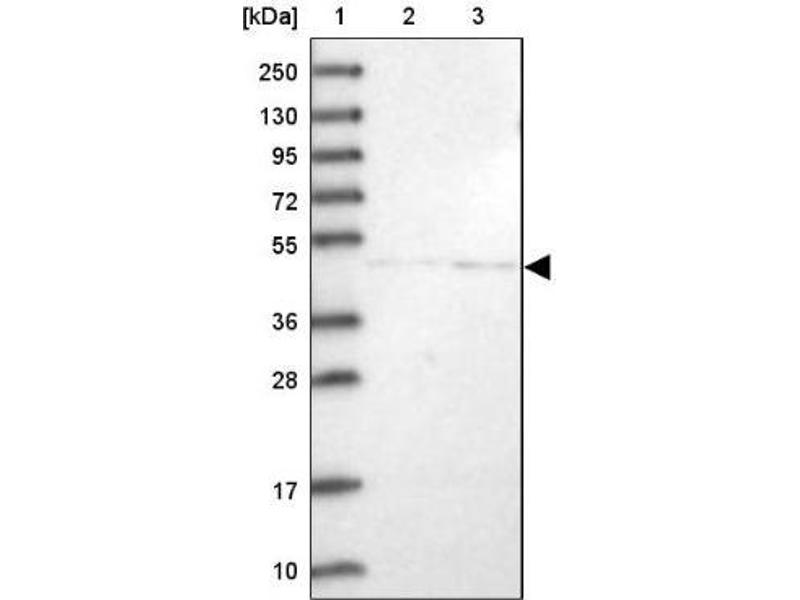 Western Blotting (WB) image for anti-Neuregulin 2 antibody (NRG2) (ABIN4338711)