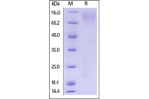 Image no. 2 for Carcinoembryonic Antigen-Related Cell Adhesion Molecule 1 (Biliary Glycoprotein) (CEACAM1) (AA 35-428) protein (His tag,AVI tag,Biotin) (ABIN3137678)