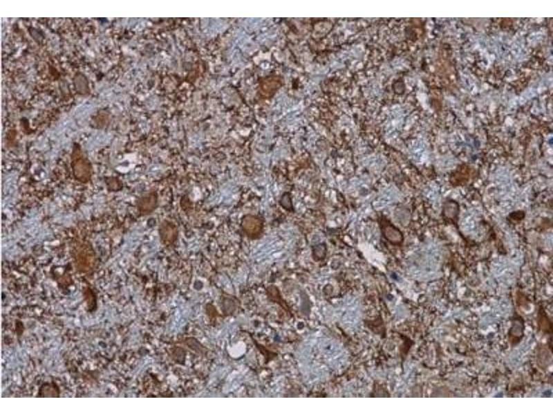 Immunohistochemistry (Paraffin-embedded Sections) (IHC (p)) image for anti-C3 antibody (Complement Component 3) (ABIN442056)