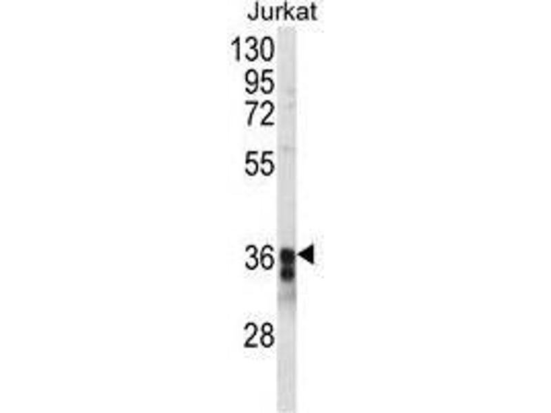 Western Blotting (WB) image for anti-Transmembrane Protein 173 (TMEM173) (AA 318-348), (C-Term) antibody (ABIN955253)