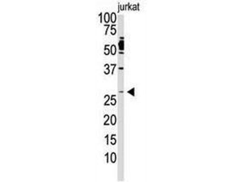 image for anti-Dickkopf 2 Homolog (Xenopus Laevis) (DKK2) (C-Term) antibody (ABIN357070)