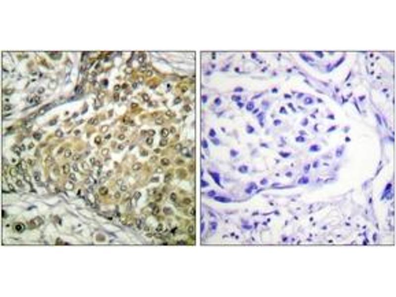 Immunohistochemistry (IHC) image for anti-p53 antibody (Tumor Protein P53) (acLys379) (ABIN1535528)