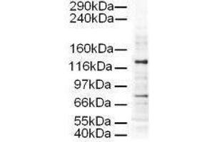 Image no. 1 for anti-Adaptor-Related Protein Complex 3, delta 1 Subunit (AP3D1) (AA 686-698) antibody (ABIN129555)