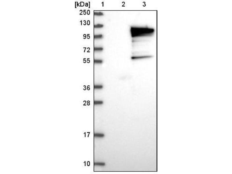 Western Blotting (WB) image for anti-Ubiquitin Interaction Motif Containing 1 (UIMC1) antibody (ABIN4349369)