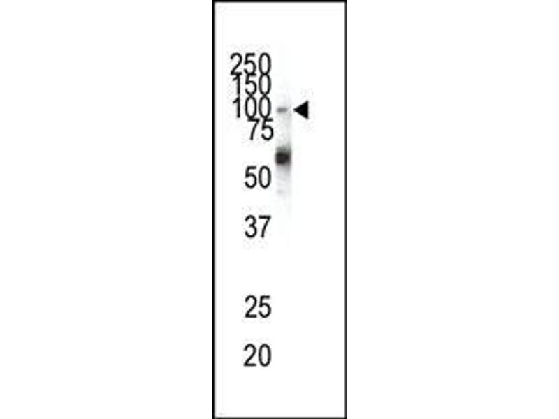 Western Blotting (WB) image for anti-Ephrin Type A Receptor 1 (EPHA1) (N-Term) antibody (ABIN359788)