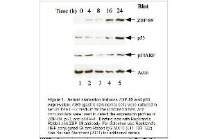 Image no. 1 for anti-Zinc Finger Protein 148 (ZNF148) antibody (ABIN117932)