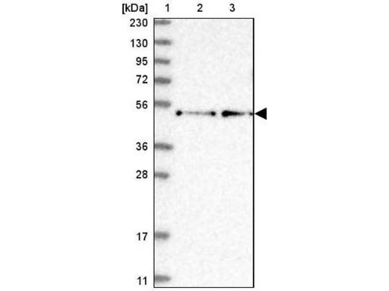 Western Blotting (WB) image for anti-Rcor2 抗体 (REST Corepressor 2) (ABIN4349754)