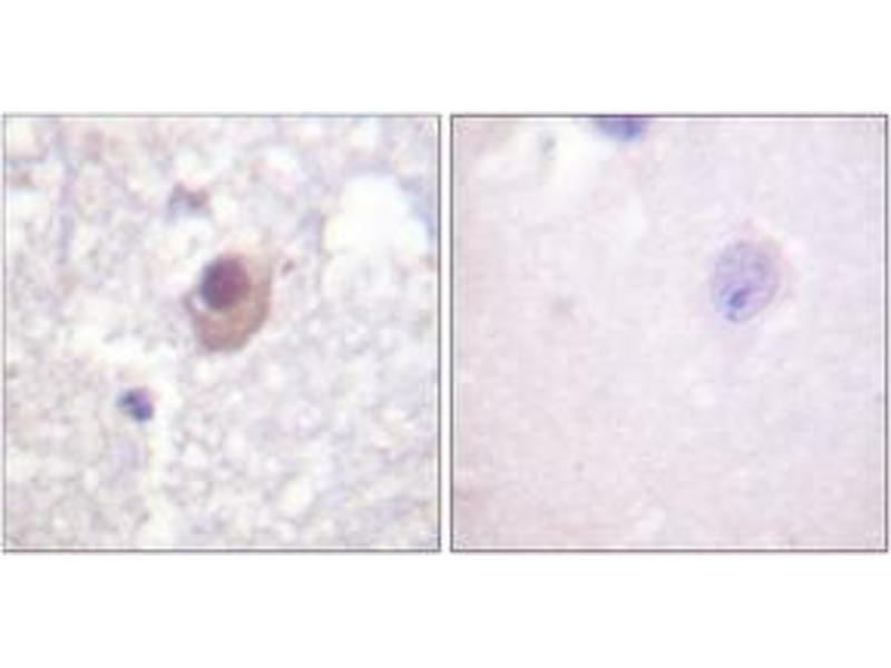 Immunohistochemistry (IHC) image for anti-SGK1 antibody (serum/glucocorticoid Regulated Kinase 1) (ABIN1532486)