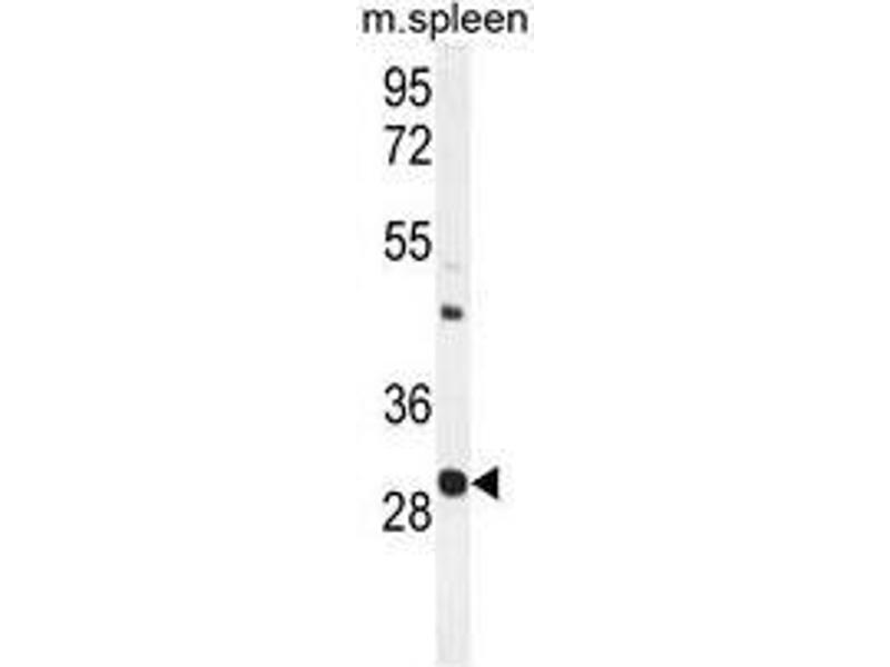 Western Blotting (WB) image for anti-Upstream Transcription Factor 1 (USF1) (AA 174-201), (Middle Region) antibody (ABIN955484)