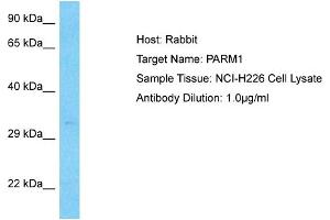 Image no. 1 for anti-Prostate Androgen-Regulated Mucin-Like Protein 1 (PARM1) (N-Term) antibody (ABIN5515902)