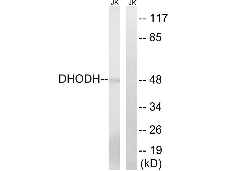 Image no. 2 for anti-DHOdehase (Internal Region) antibody (ABIN1576068)