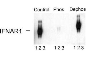 image for anti-IFNAR1 antibody (Interferon (Alpha, beta and Omega) Receptor 1) (pSer539) (ABIN372660)