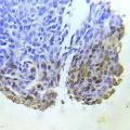 Immunohistochemical analysis of paraffin- embedded human lung adenocarcinoma tissue using Abl1 (Ab-204) Antibody (E022053).