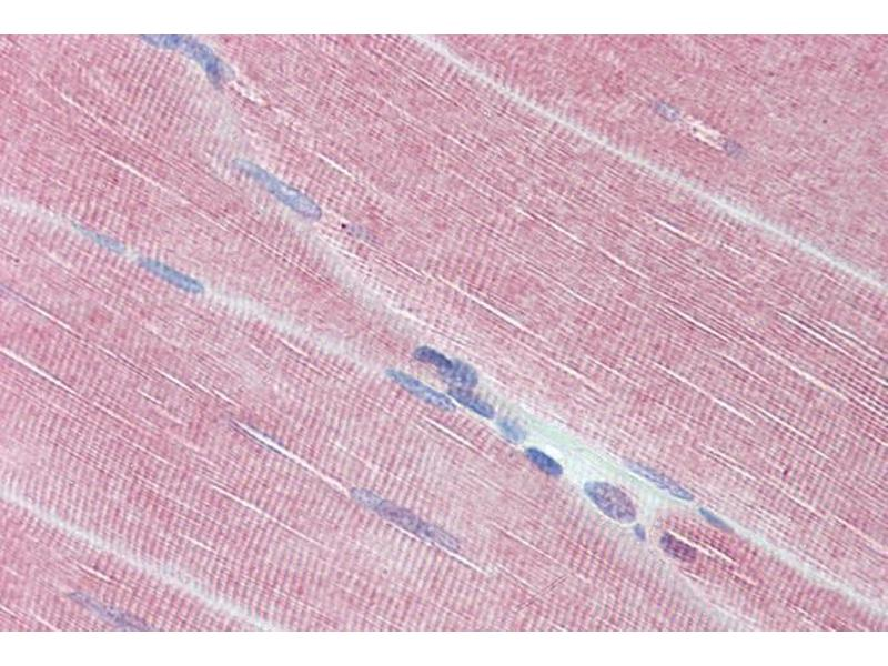 Image no. 1 for anti-Myosin Phosphatase, Target Subunit 1 (PPP1R12A) (C-Term) antibody (ABIN6391349)